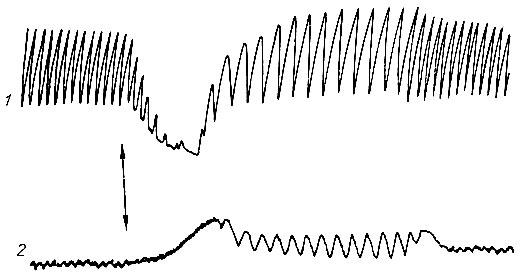 Кривые дыхания (1) и
