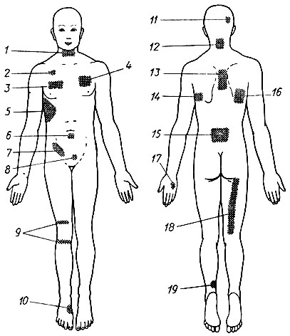145. Места применения на коже